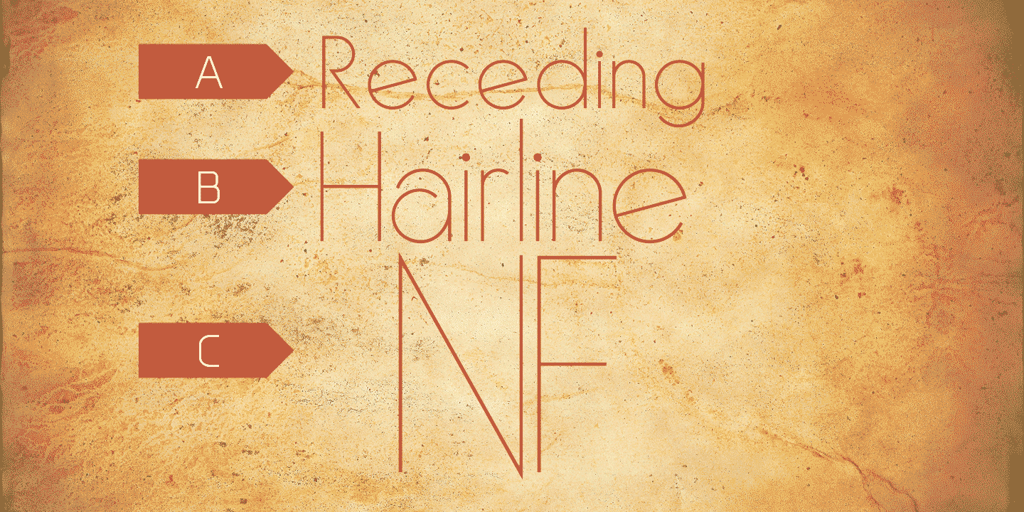 Receding Hairline NF